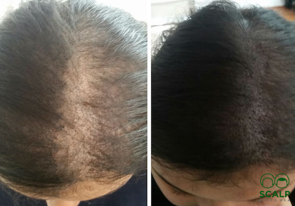 Hair Loss Scalp And Hairline Micropigmentation Empire