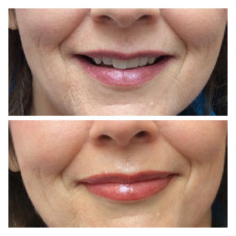 photo permanent lips before after 1 340x340 20kb