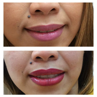 photo permanent lips before after 3 340x340 20kb