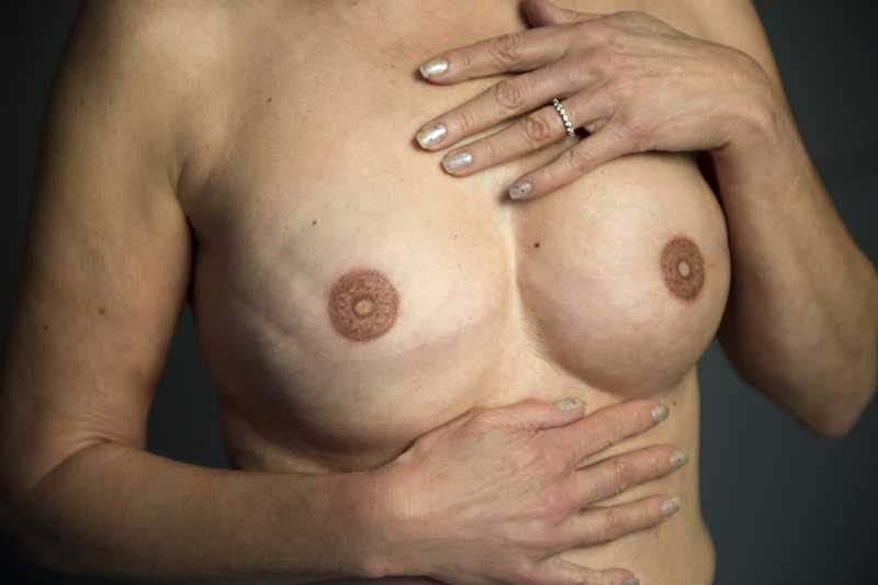 photo breasts after areola restoration