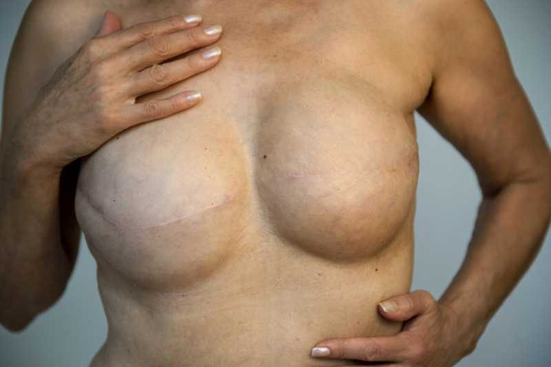 photo breasts before areola restoration