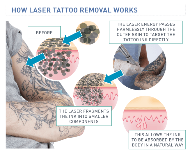 tattoo removal how does it work 1