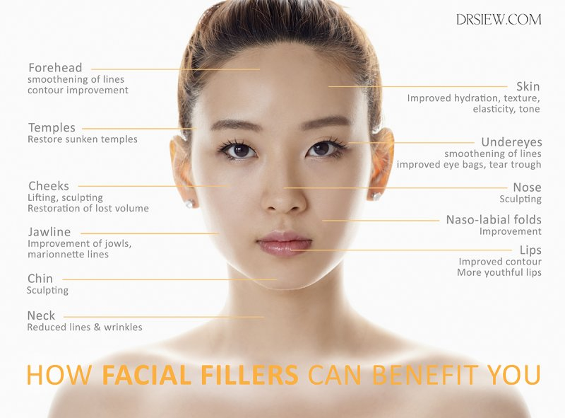 Facial fillers benefit dr Siew