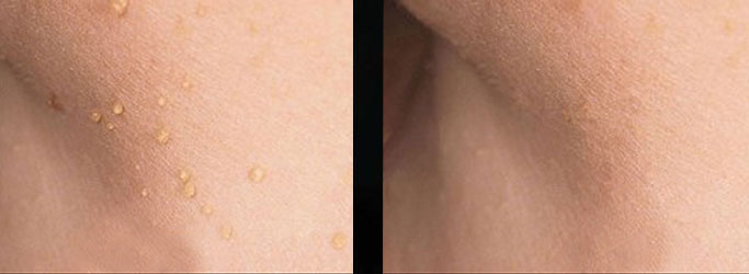 CryoPen skin tags before after 1