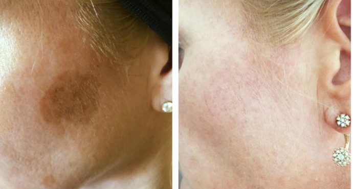 Cryopen skin pigmentation before after e1471089697342 690x370