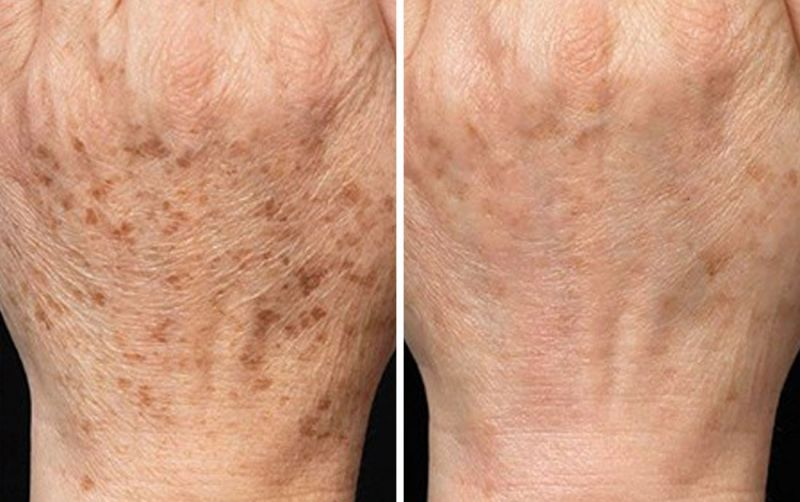 Cryotherapy Cryopen age spots hands