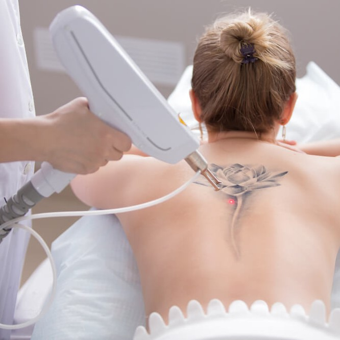 Tattoo Removal Bristol UK